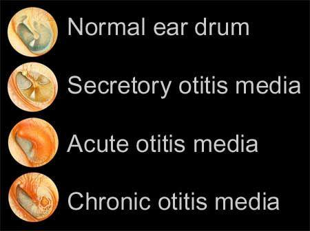 What Otitis Media looks like as infographic. # ... Otitis Media Vs Normal Ear