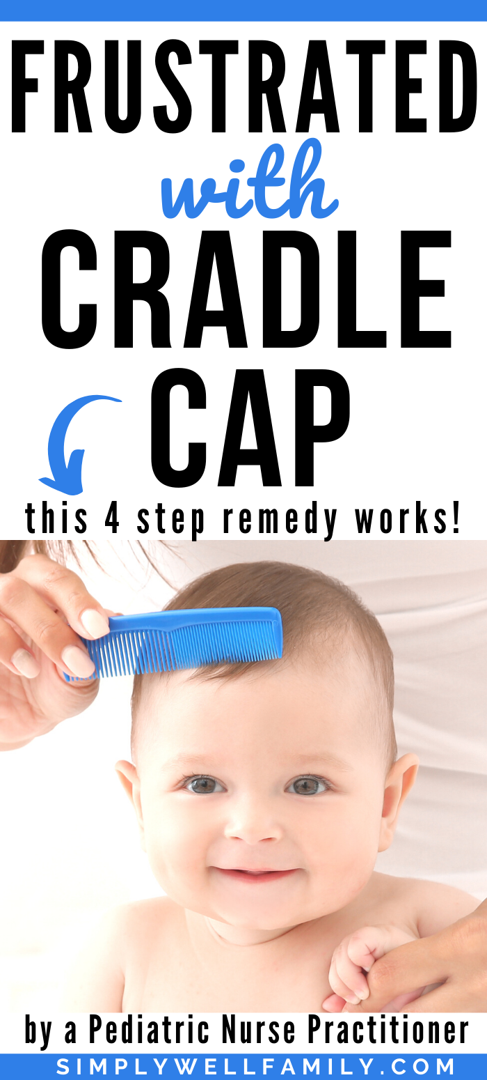 Cradle Cap What Is It And How To Treat It Simply Well Family In 2020 Baby Cradle Cap Cradle Cap Cradle Cap Remedies