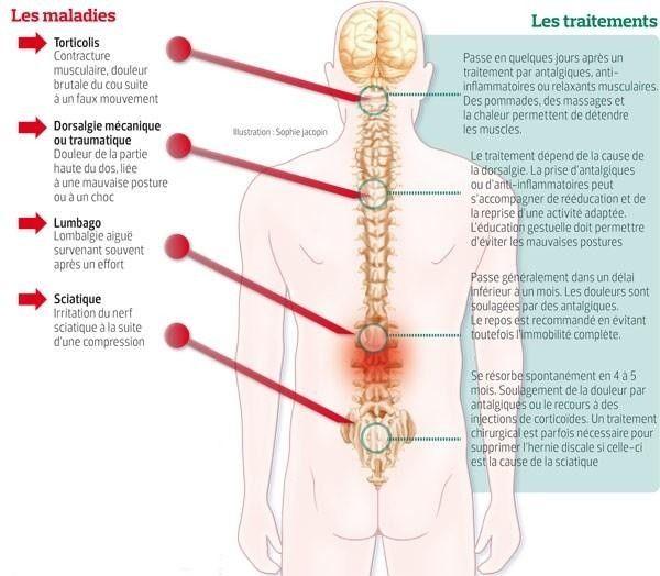 Back Brace Posture Corrector Back Support Belt With Fully Adjustable Straps Re Posture Corrector Back Brace Posture Corrector Back Posture Corrector