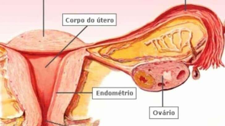 Pin Em Cancer De Estomago