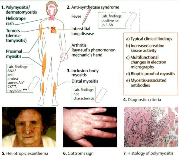 Diseases Physical Ailments: Myositic Diseases: Polymyositis / Dermatomyositis