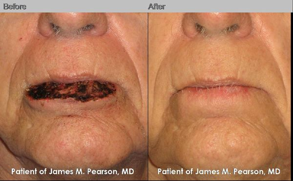 Lip Reconstruction By Dr James M Pearson Md Pearsonmd