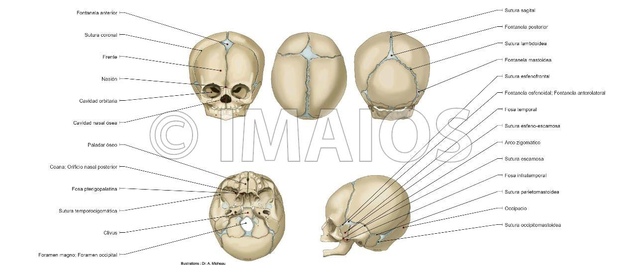 Cráneo Neonato - Fontenalas craneales: Fontanela anterior, Fontanela ...