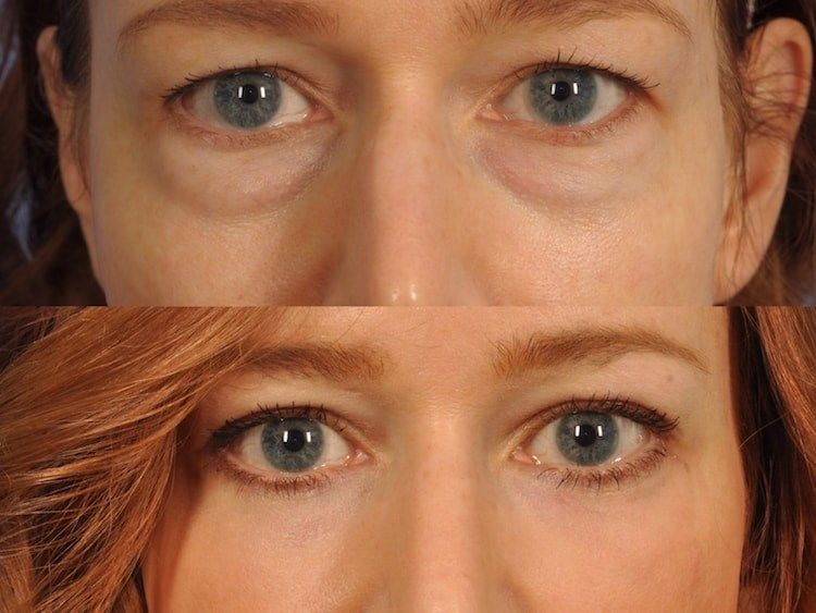 Female upper lower eyelid lift before after close up | Eye