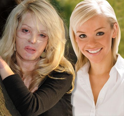 An Amazing Story So Courageous And Beautiful Katie Piper Celebrity Crush Inspirational Women