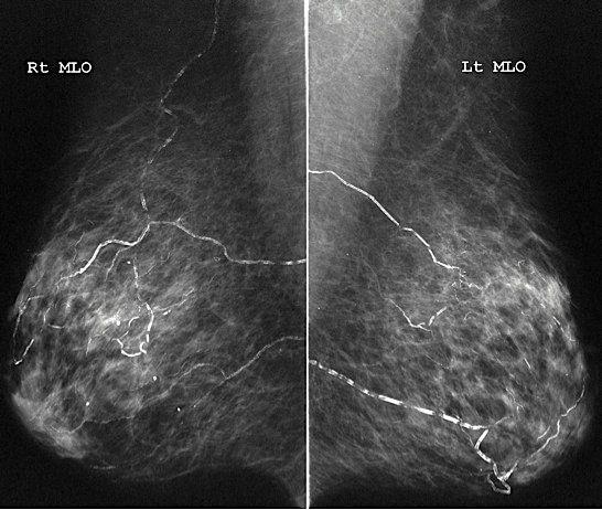 Vascular breast calcifications