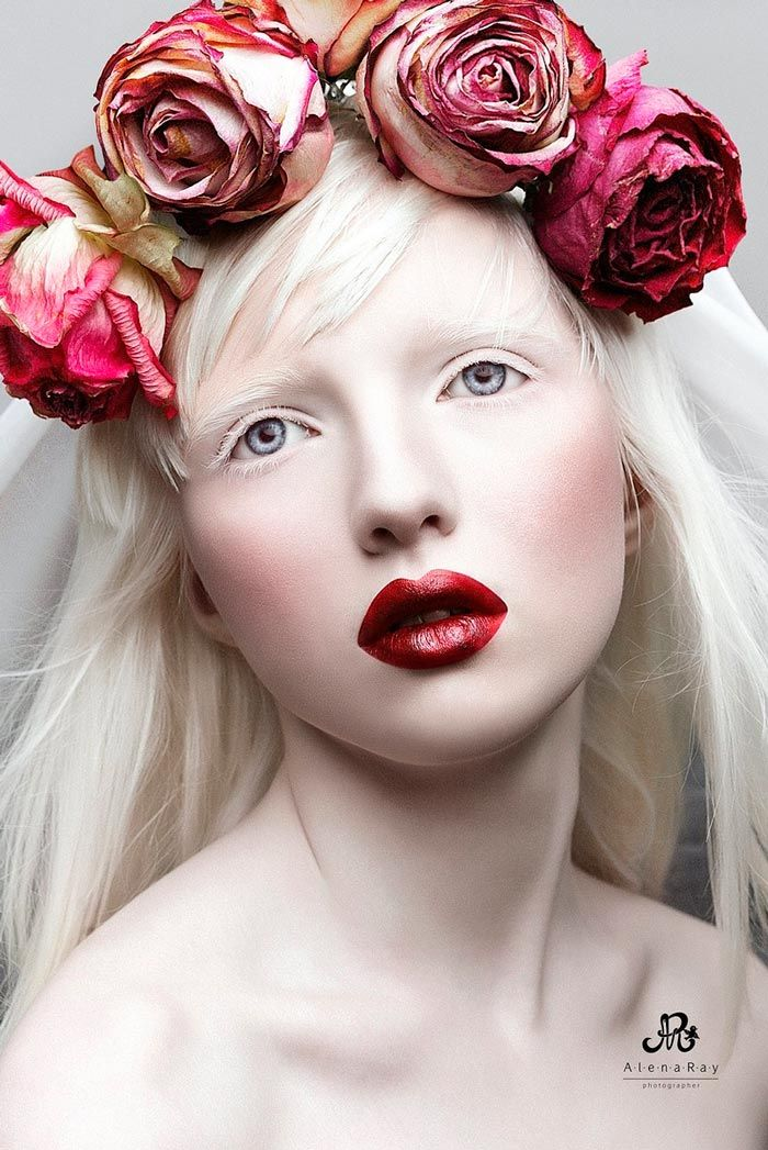 Nastya Zhidkova, the Most Beautiful Albino in the World