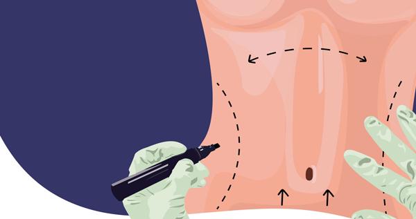 15 سؤال وجواب تجربتي مع عملية شفط وشد البطن