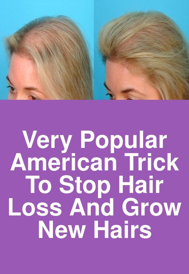 Very Popular American trick to stop hair loss and grow new hairs
