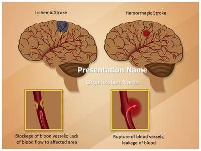 Ischemic hemorrhagic brain stroke powerpoint template is one of ischemic hemorrhagic brain stroke powerpoint template is one of the best powerpoint templates by editabletemplates toneelgroepblik Choice Image