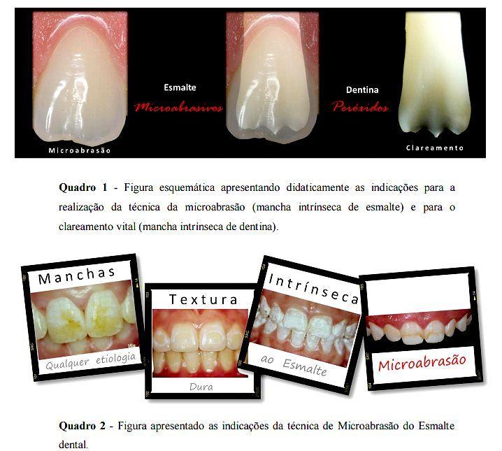 clareamento-dental