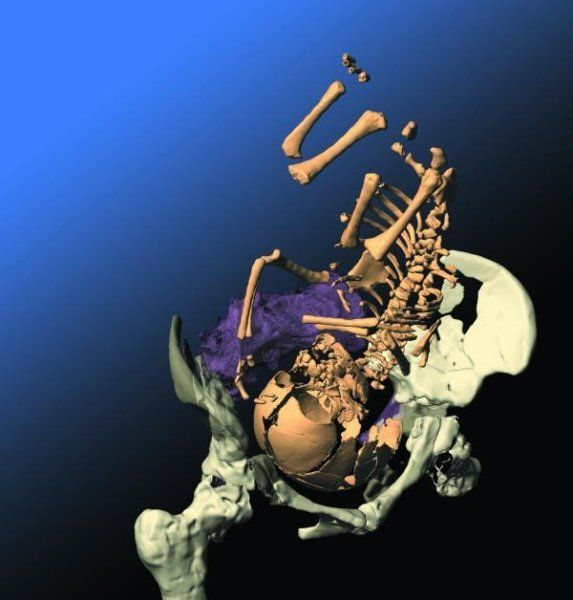 Neanderthals had a brain at birth of a similar size to that of modern-day babies. However, after birth, their brain grew more quickly than it does for Homo sapiens and became larger too. Nevertheless, the individual lifespan ran just as slowly as it does for modern human beings.