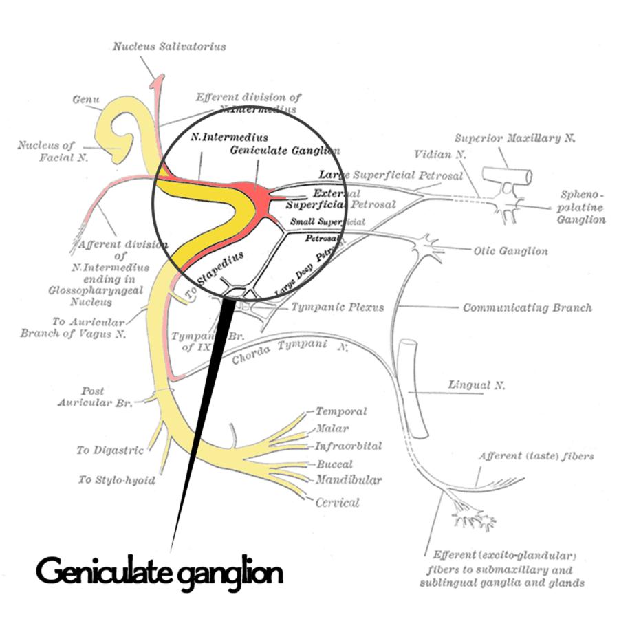 Geniculate Ganglion | Geniculate Neuralgia | Pinterest | Trigeminal ...