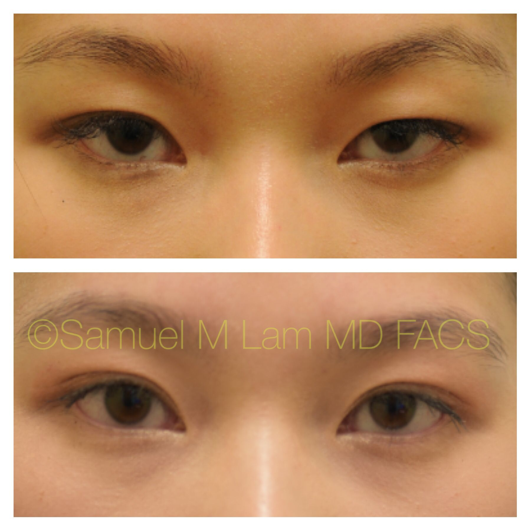 7426d06888db31b81a638d23efbe14eb - How To Get Rid Of Double Eyelids Without Surgery