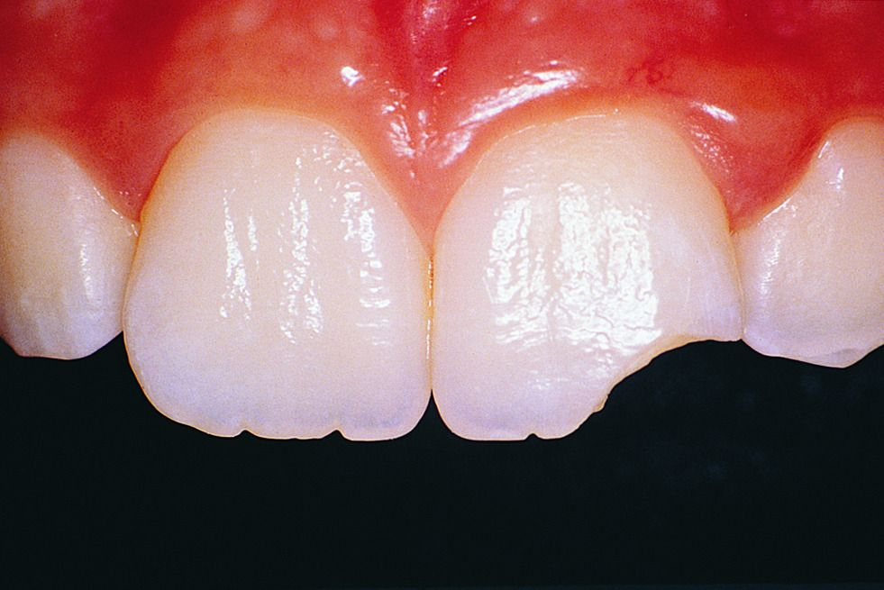 Flamboyantly Fed Up — coltre Tooth fracture Chipped