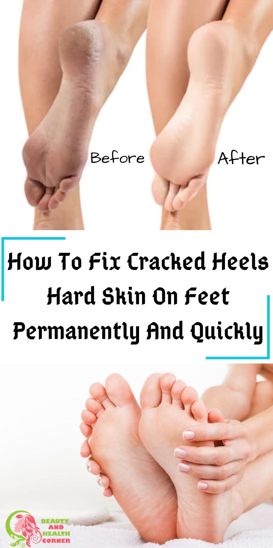 Pin On Cracked Skin On Heels