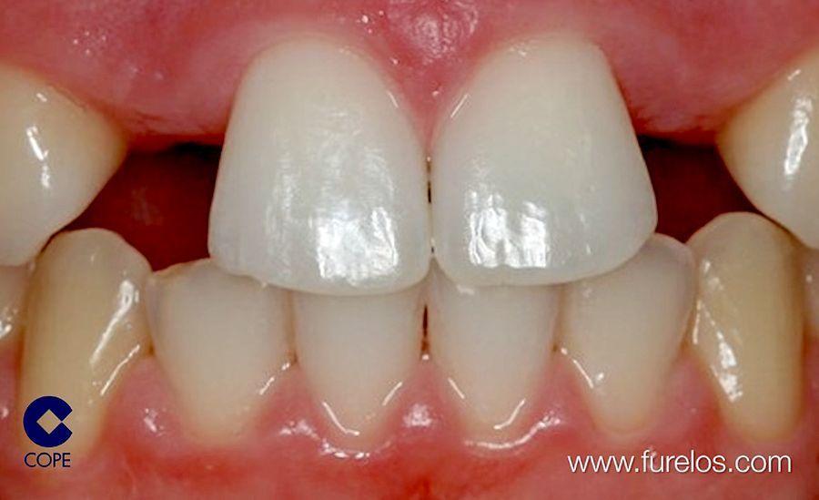 agenesia-dental