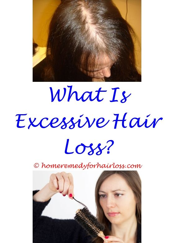 Hair Products That Make Hair Grow | Hair loss, Hair loss forum and ...
