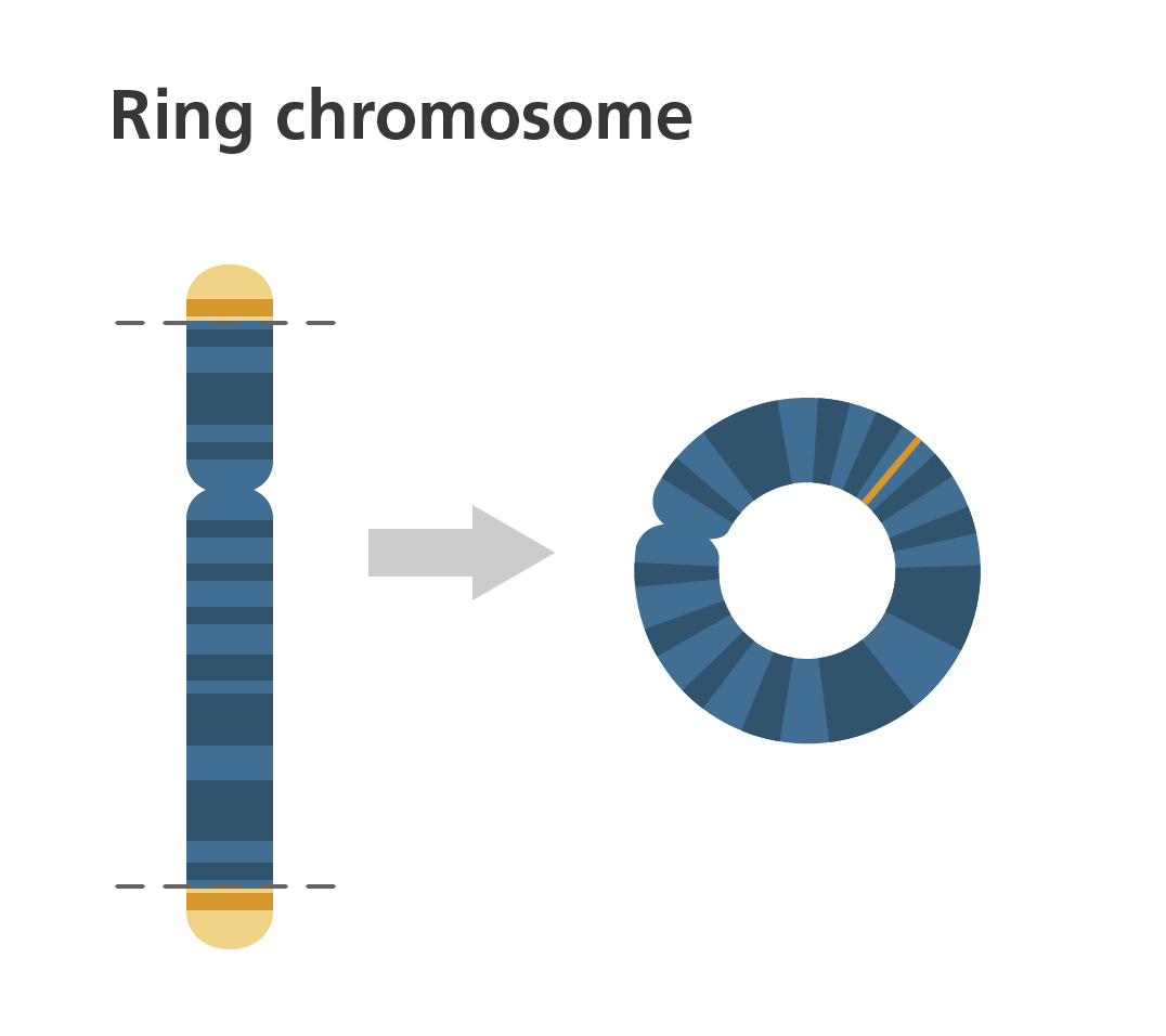 Chromosome Deletion What Is A Chromosome Disorder Illustrating Genomics