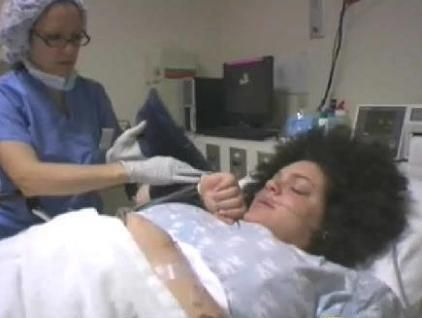 C-section birth | Video Live birth: C-section surgery ...
