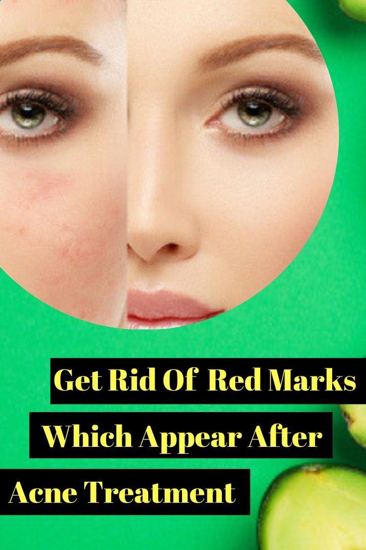 Akne Rote Flecken