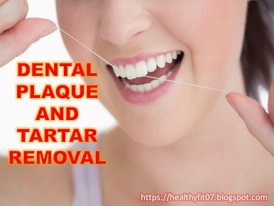 how to remove plaque and tartar from your teeth at home