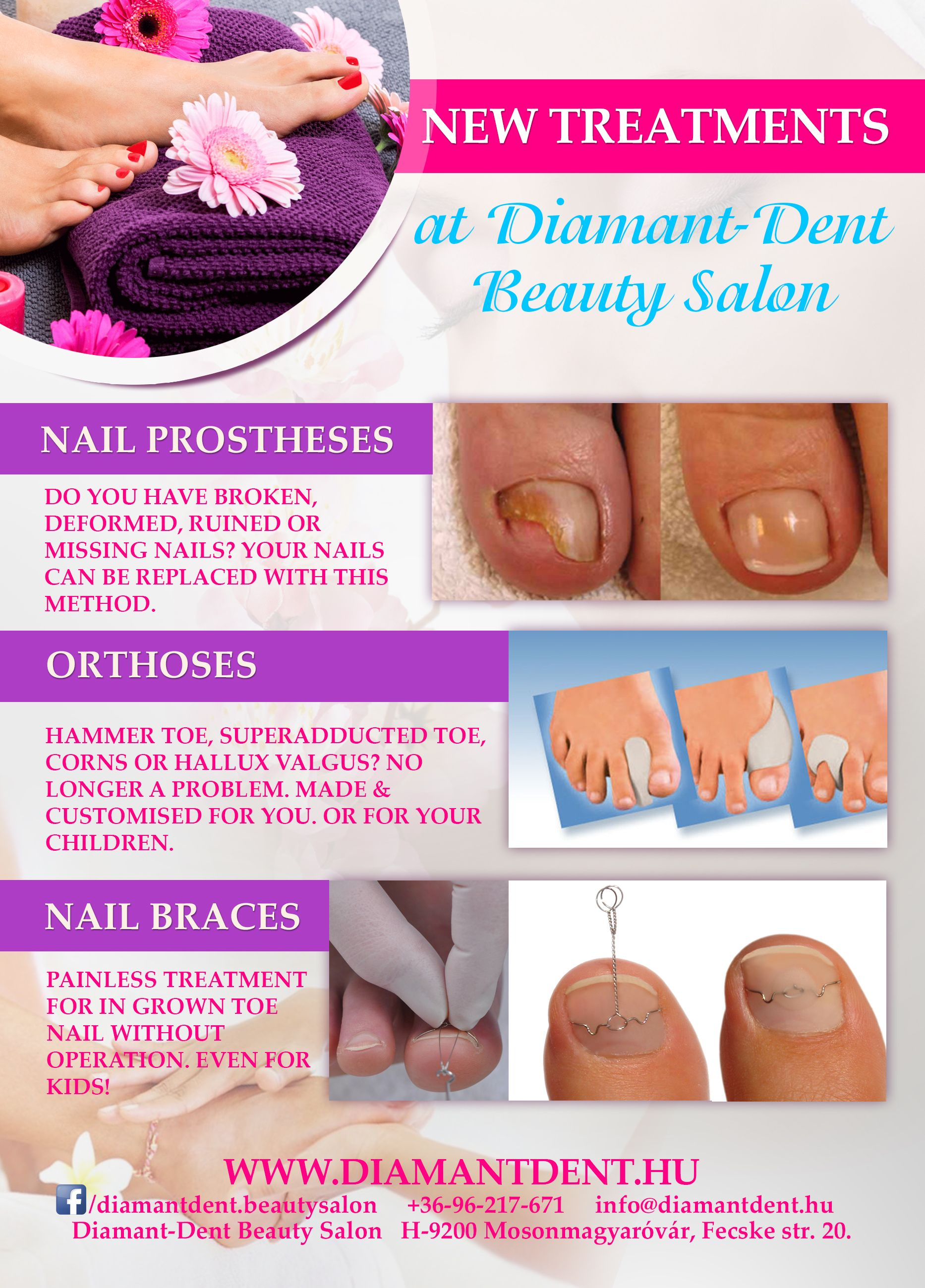 New treatments in Diamant Dent Beauty Salon | Actions | Pinterest