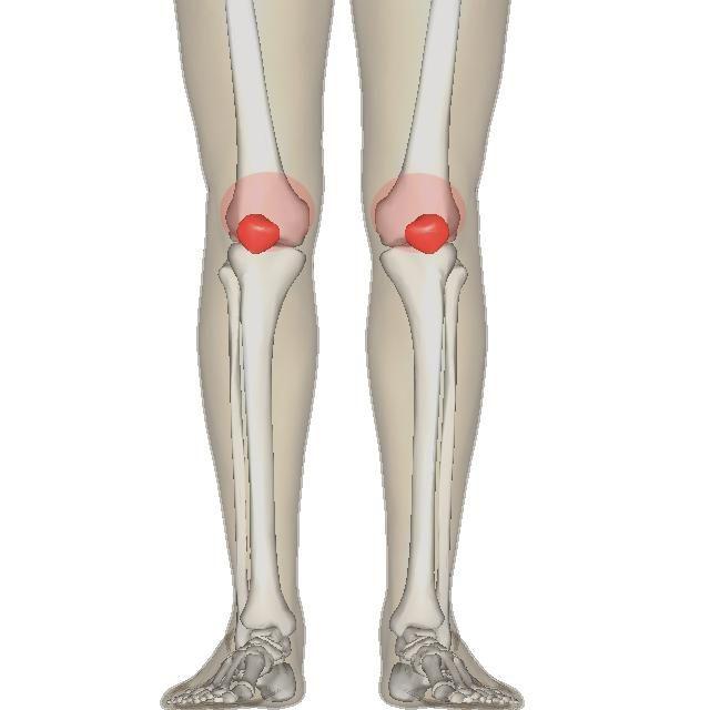 artrite medicinale articulare