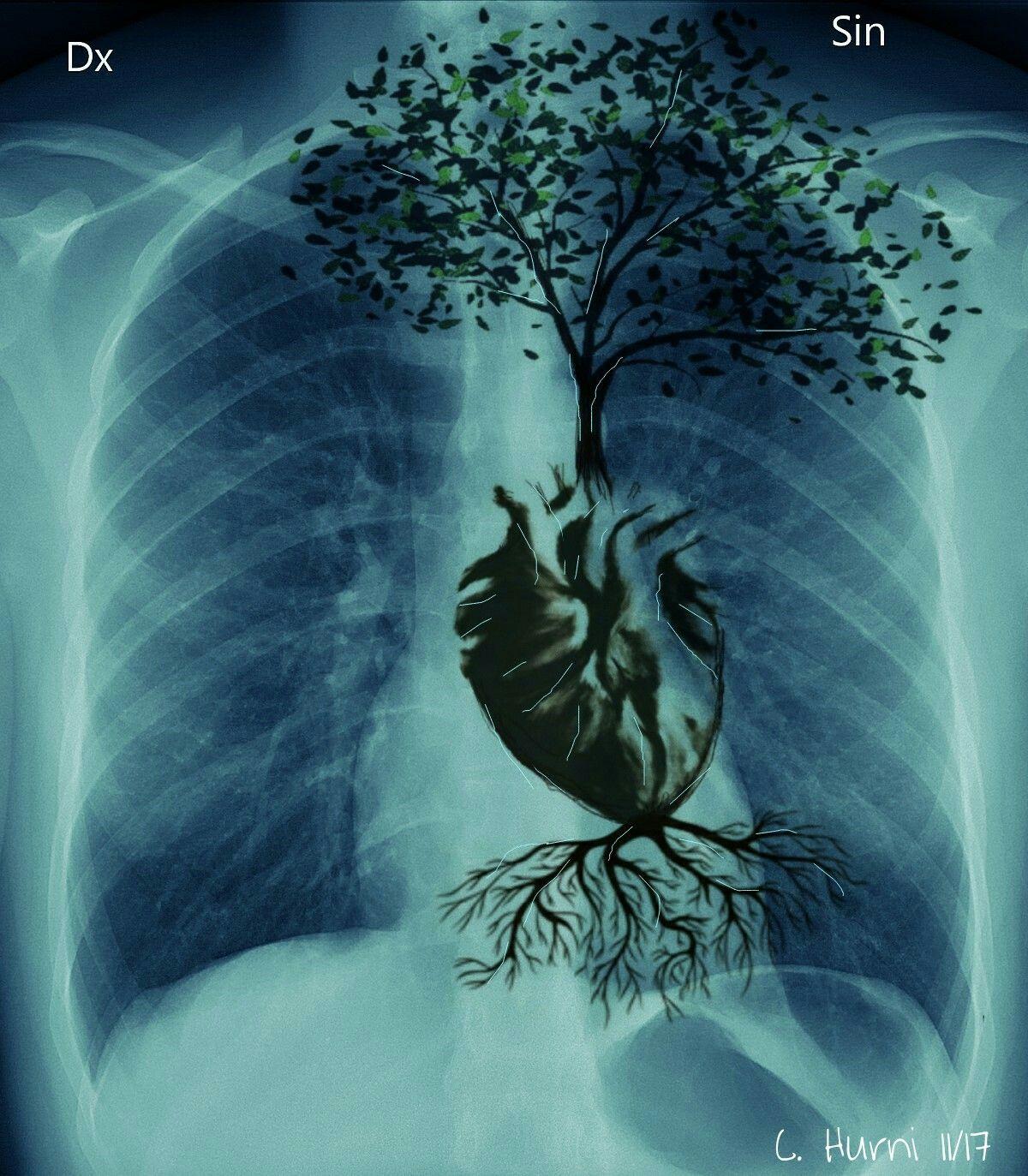 X-ray heart tree oft life | DES DEL COR | Pinterest | Eres mi ...