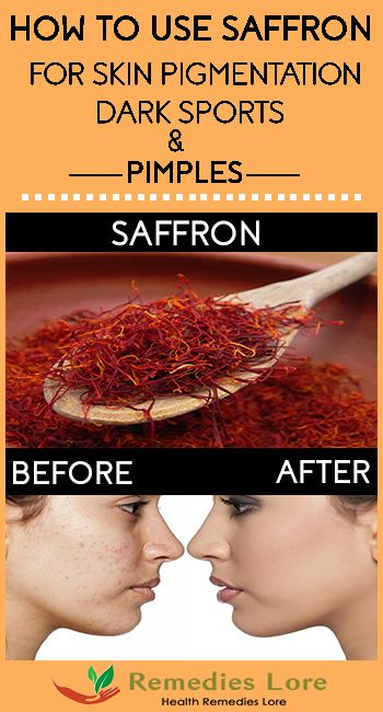 How To Use Saffron For Skin Pigmentation Pimples Remedies