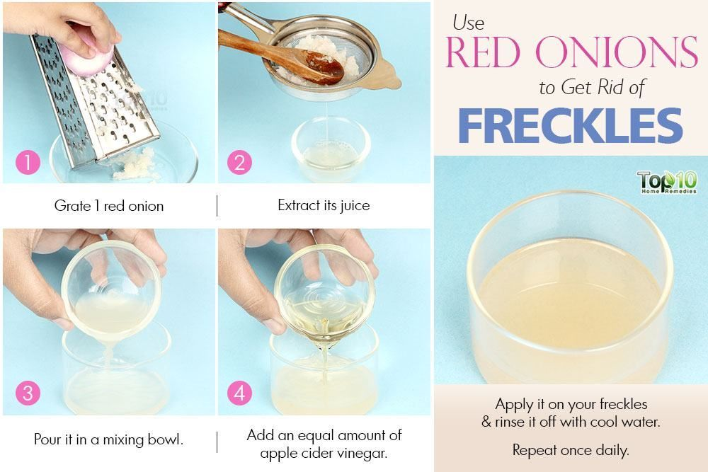onion juice to get rid of freckles #OvernightAcneTreatment