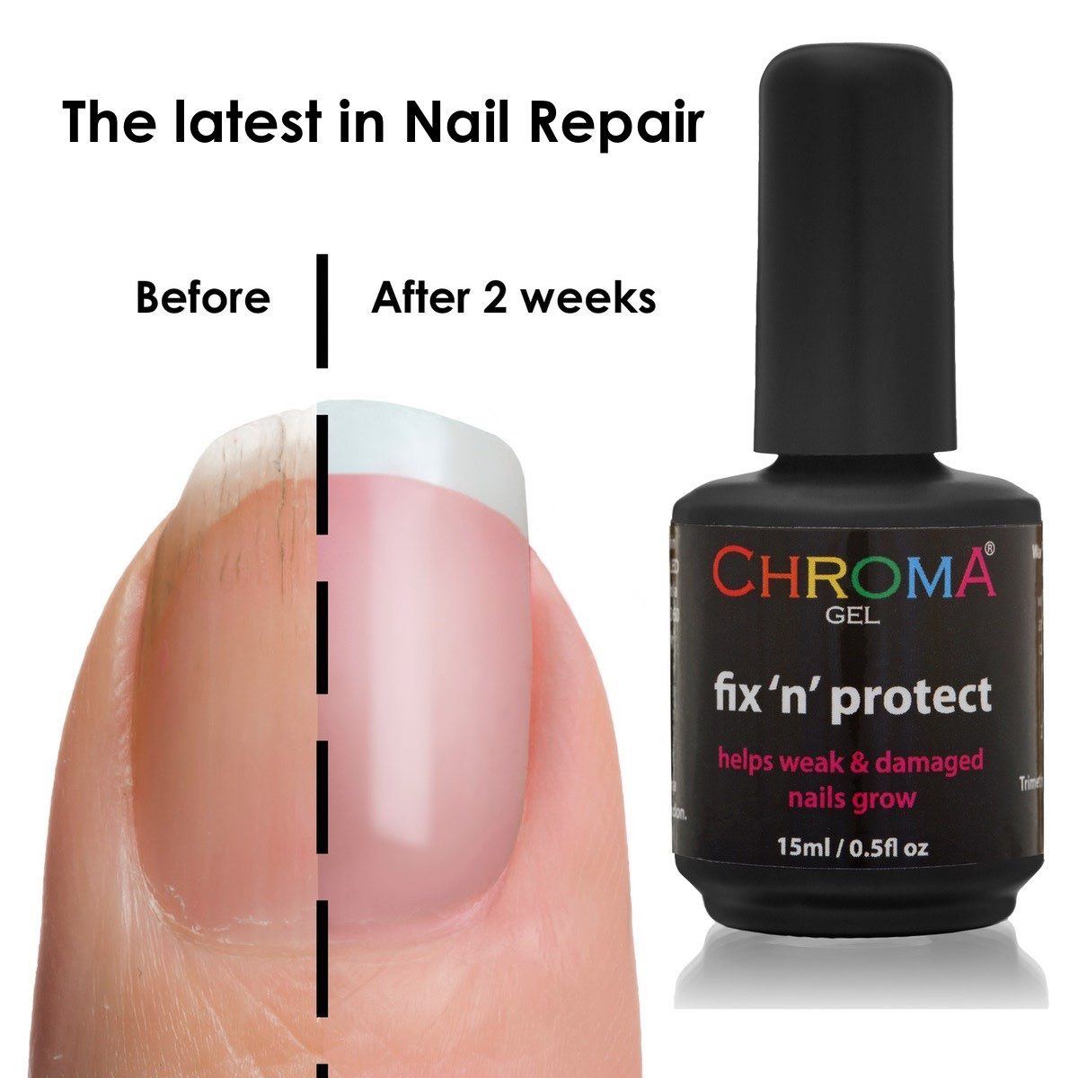 Fix and Protect - Nail Repair Treatment | Nail repair, Mobile nail ...