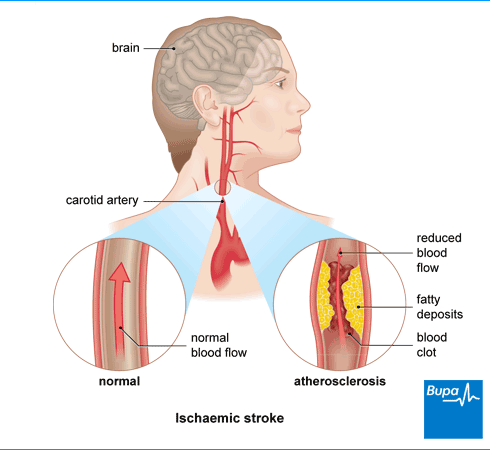 Symptoms Of Stroke Google Search Health Amp Lifestyle