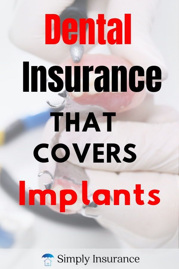 Dental Insurance That Covers Implants in 2020 // No ...