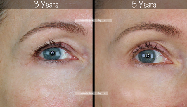 5 Year Retin A Results Before After For Wrinkles Anti Aging Hot Flashy Bloglovin Wrinkles Eye Close Up Botox Before And After
