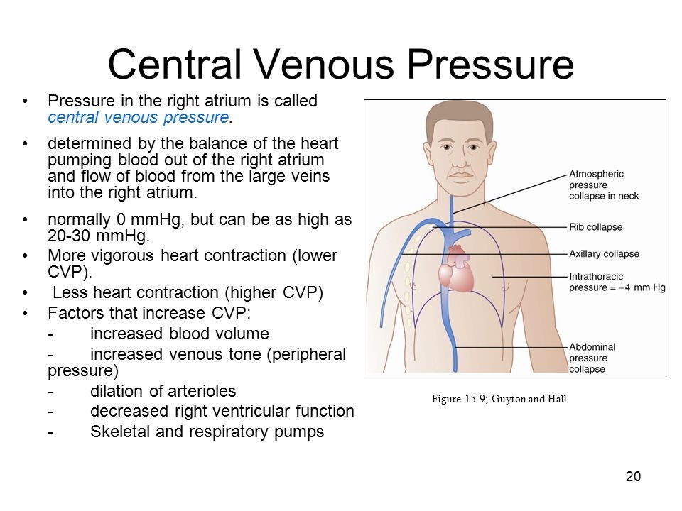 Related image Central venous pressure, Fundamentals of