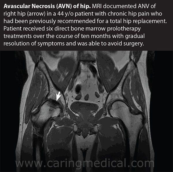 Avascular Necrosis Avn Of The Hip Avascular Necrosis Avascular Necrosis Hip Hip Surgery