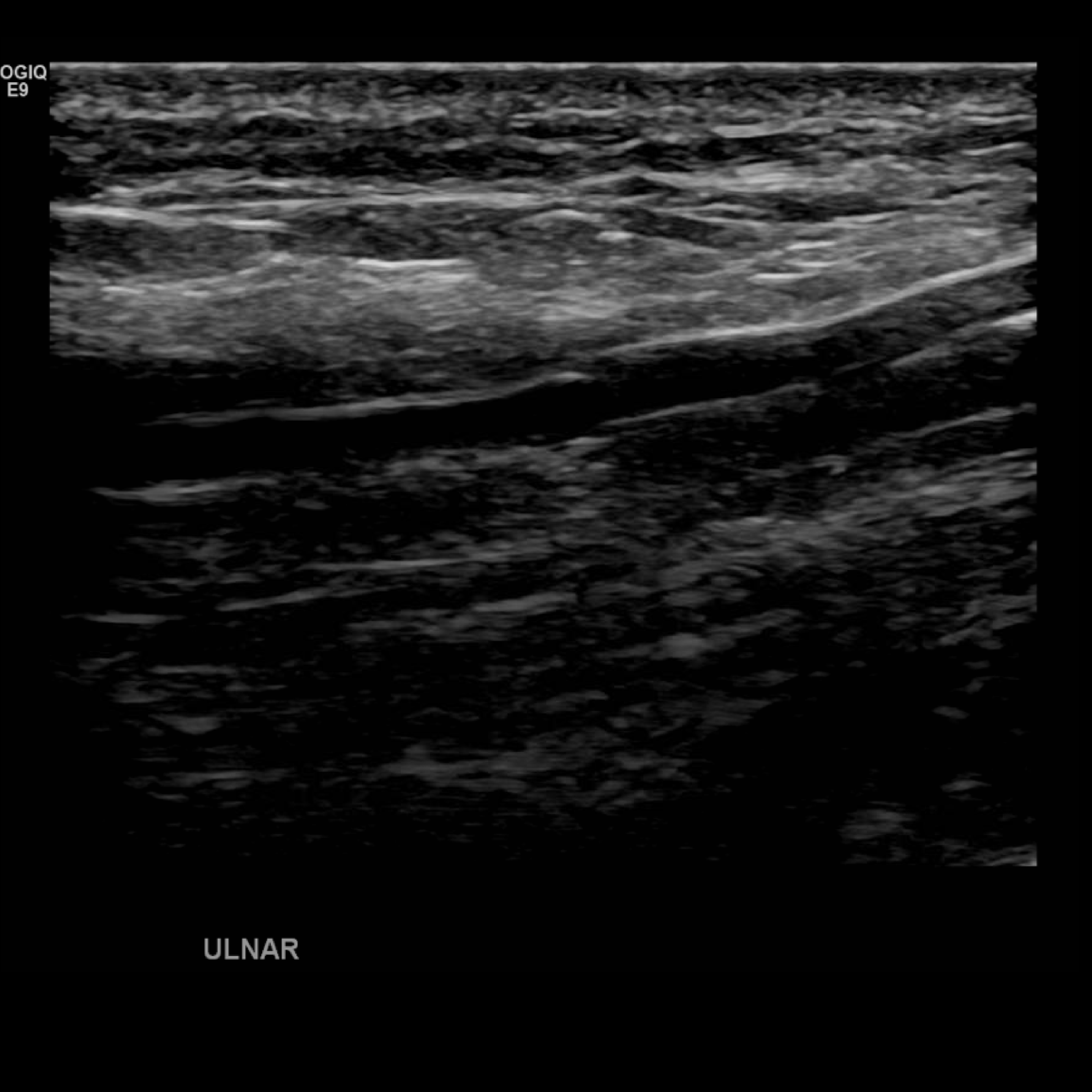 Upper Extremity Venous Doppler In