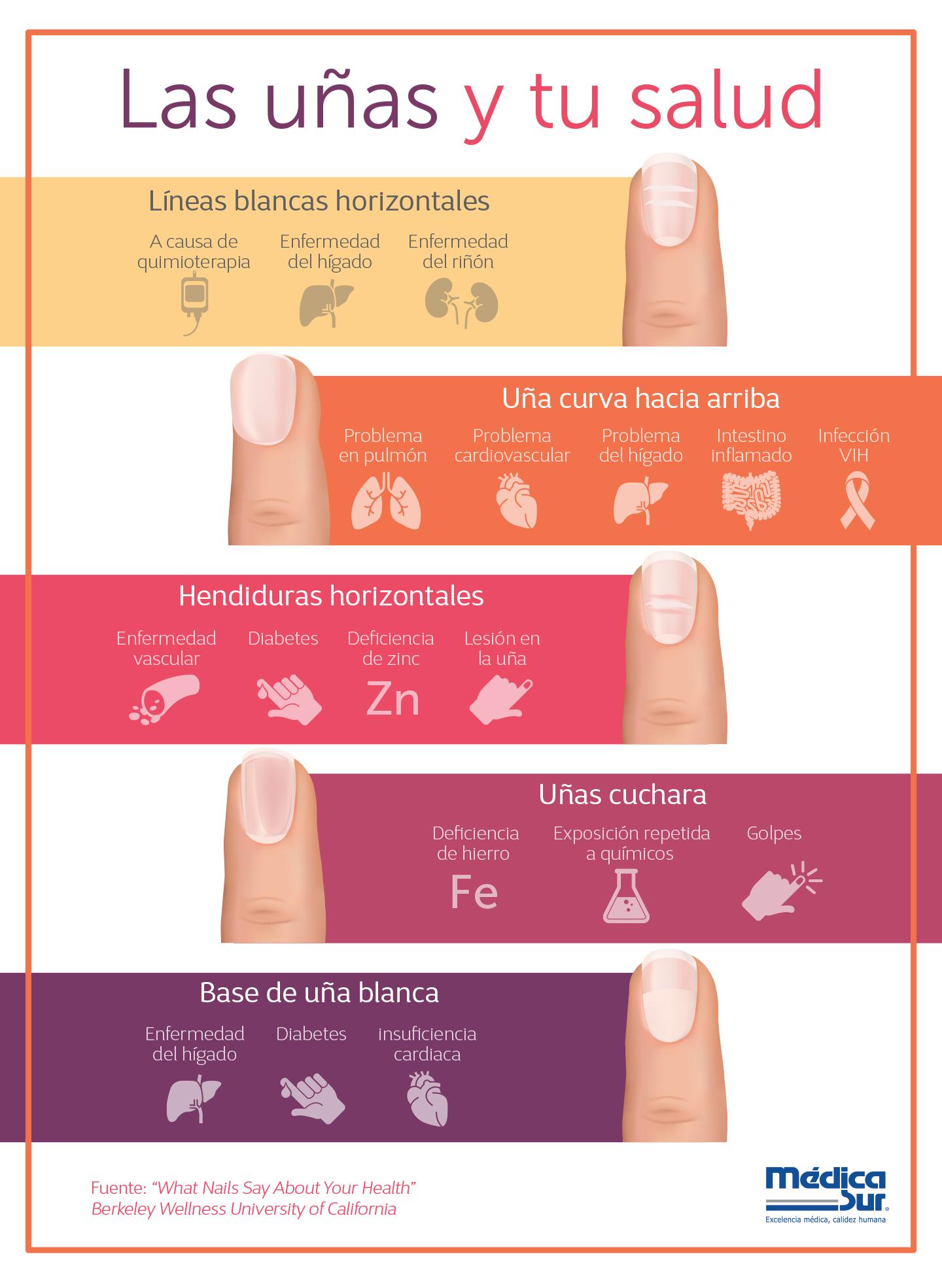 Qué Dicen Las Uñas Sobre Tu Salud Ponles Mucha Atención