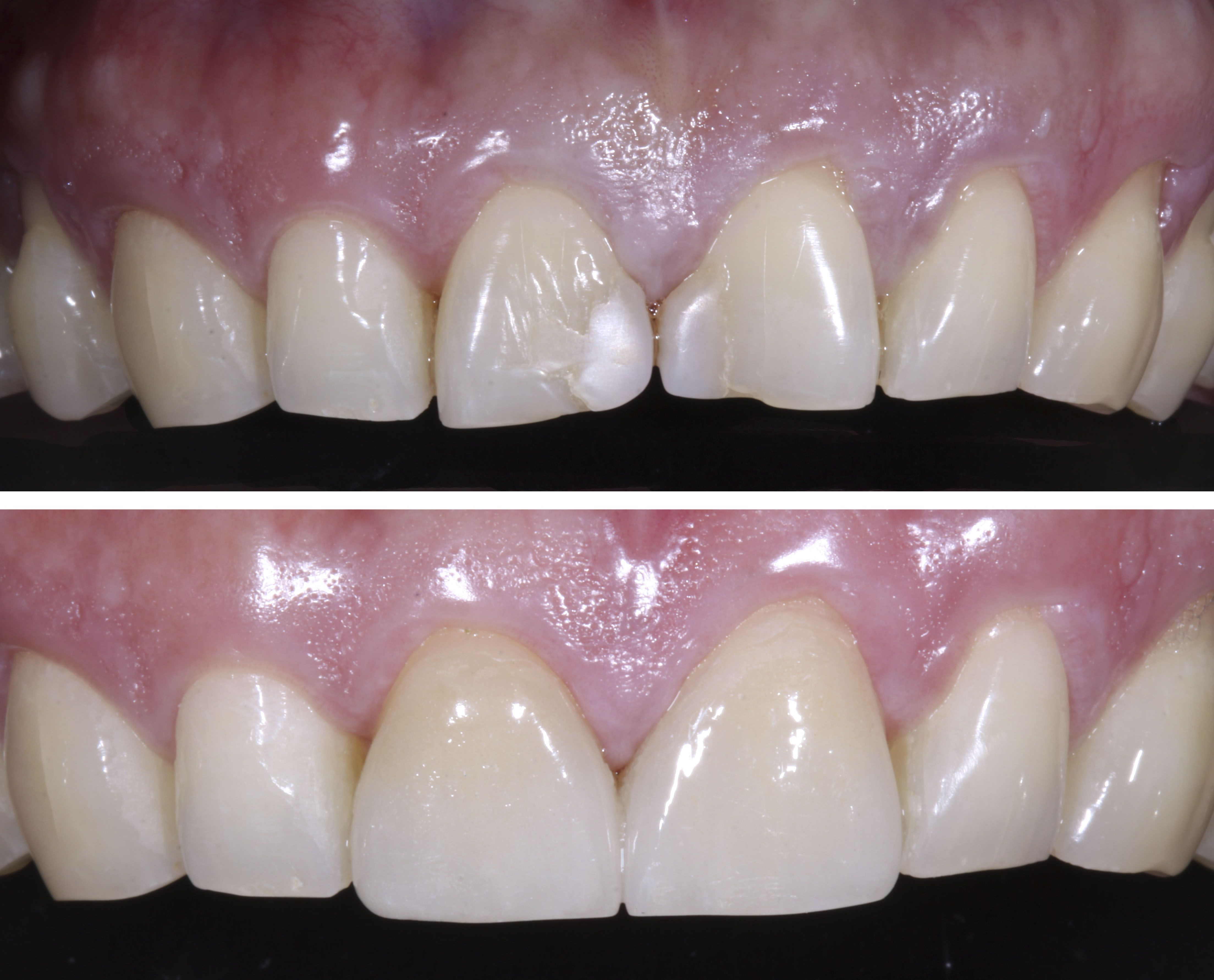 Before and After: Patient had old composite fillings on ...