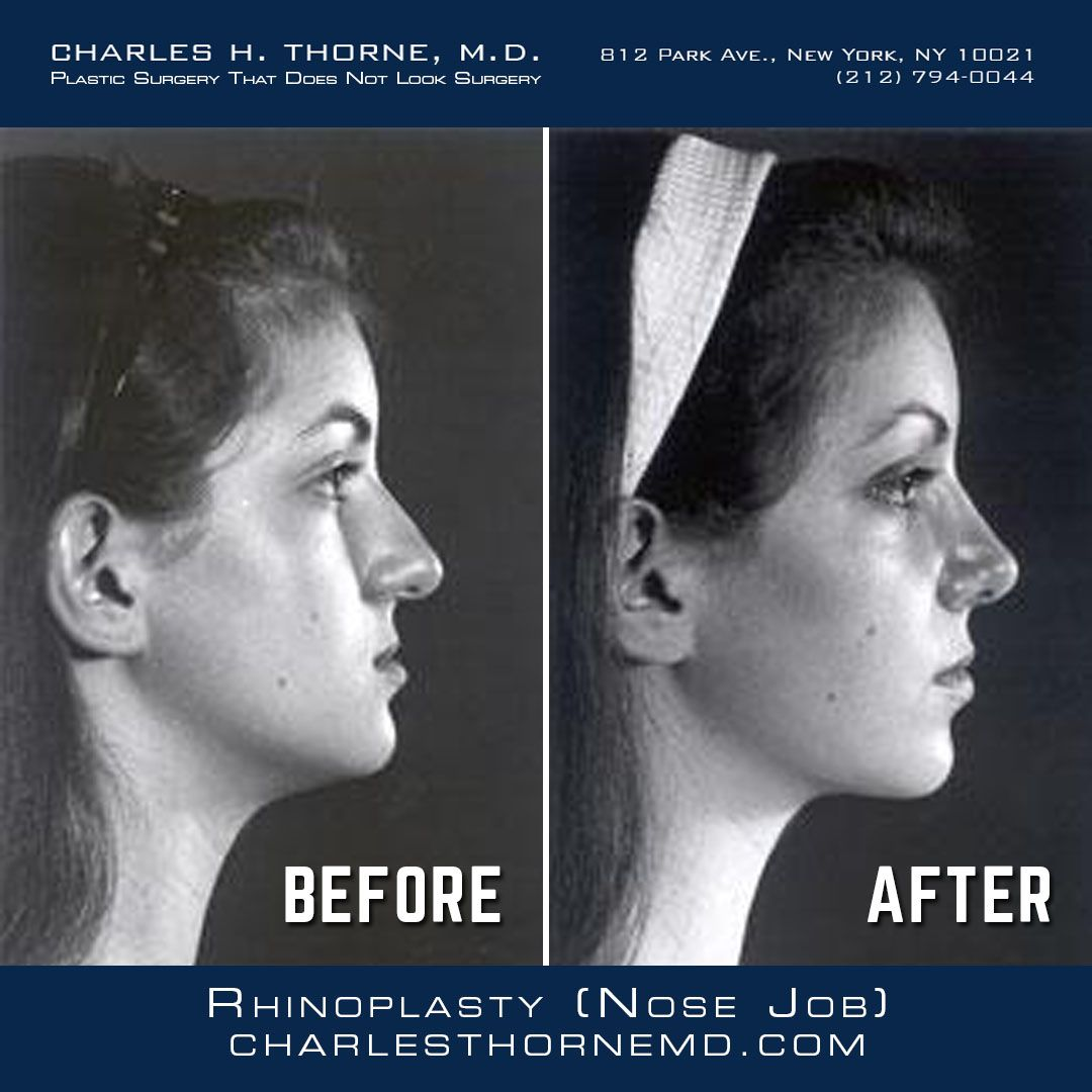 Before and after rhinoplasty the current philosophy is to