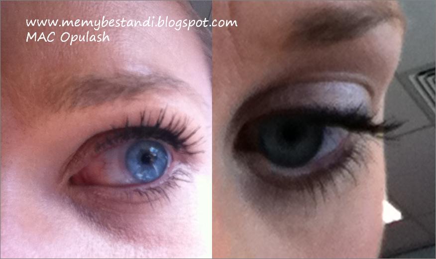 Best mascara for blepharitis sufferers Blepharitis
