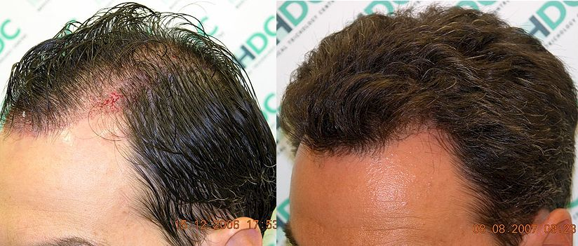 33+ How to recover from male pattern baldness ideas