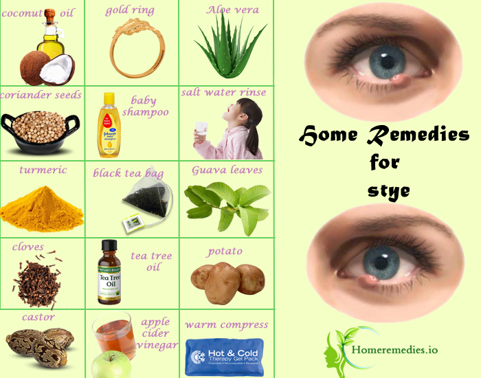 Get Rid Of Styes Under Eyelids With These Home Remedies For Stye