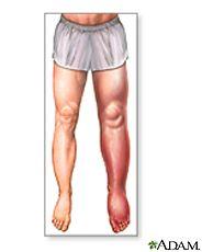 trombosis venosa en la axilas