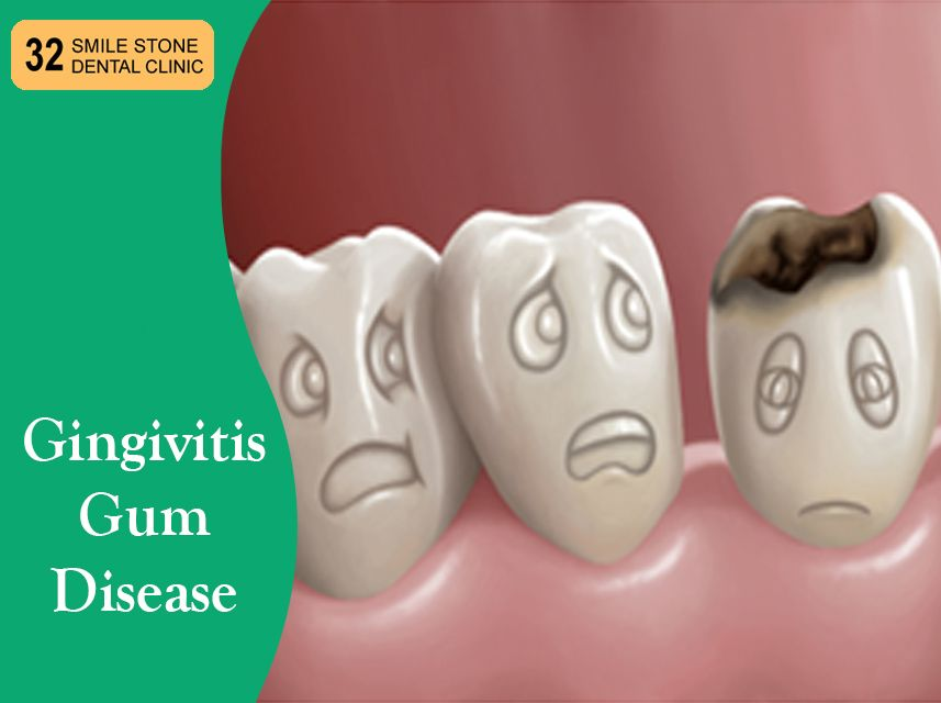 Gingivitis is the first sign of gum disease and the
