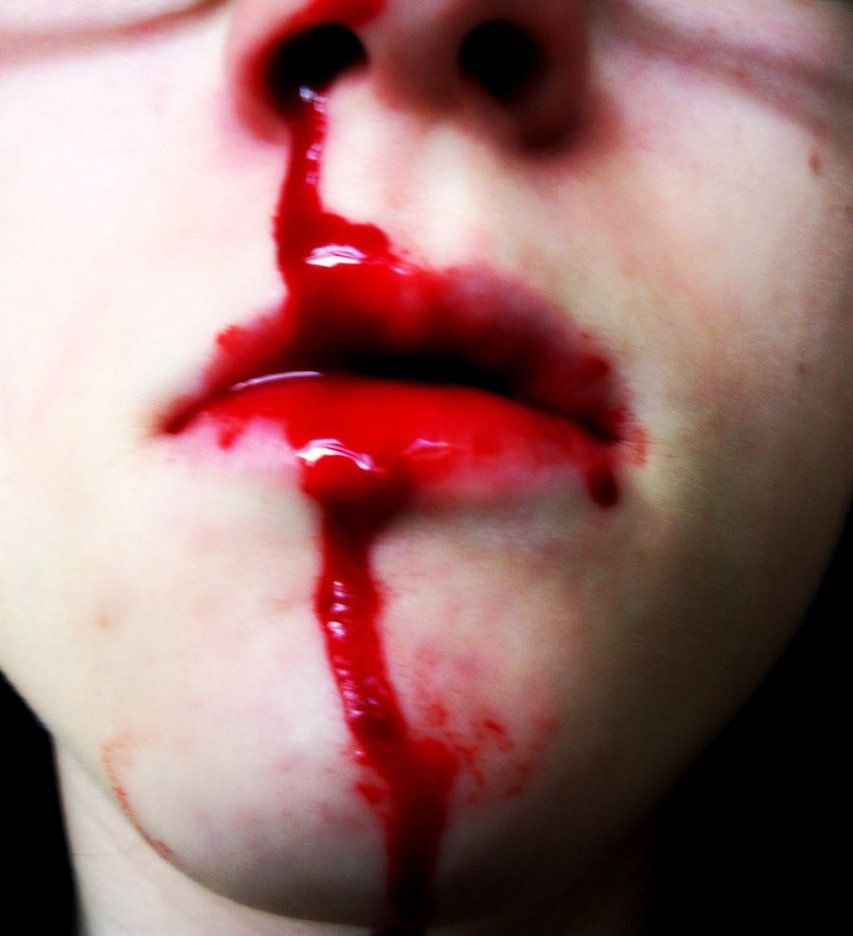 real blood - Google Search | Injury aesthetic, Nose bleeds ...