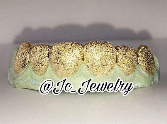 Diamond Dust Grillz Custom Gold Grillz Gold Teeth 10K White