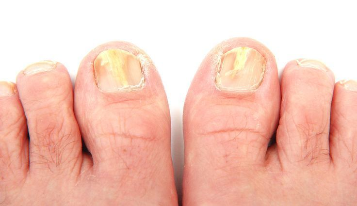 Vicks and Toenail Fungus You can get more information about nail care at Purifyt…