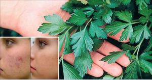 1 sola hoja de esta mata puede eliminar arrugas, acné, alergias y cualquier mancha oscura en la piel | Salud con Remedios